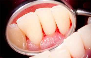 Gingivitis: Symptoms, Treatment and Prevention