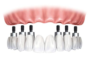 Implant Supported Teeth