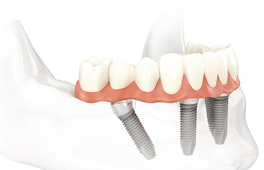 Implants Simi Valley