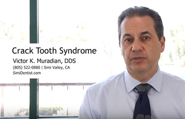 Cracked Tooth Syndrome Simi Valley