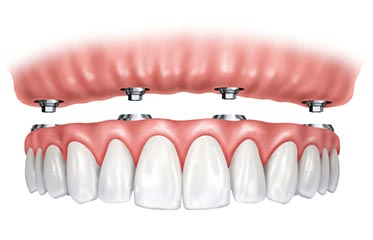 Simi valley dental implants