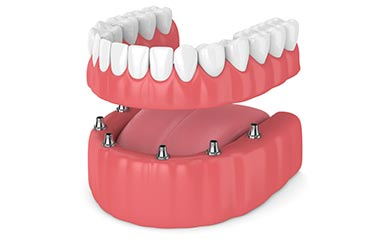Dentures Simi Valley