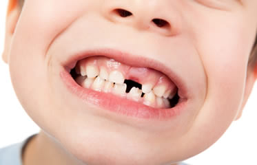 What to Do When a Tooth Falls out?