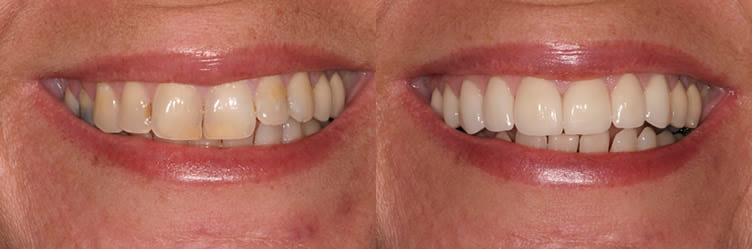 General Dentistry Simi valley dentist Before and after