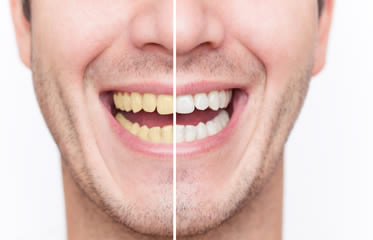 teeth whitening Simi Valley