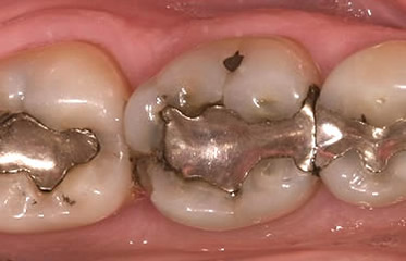 Is There a Difference Between Metal or Silver Fillings & Tooth-colored Fillings?