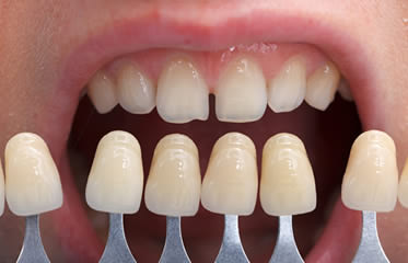 Dentist in Simi Valley Explains How to Enhance Your Smile with Veneers