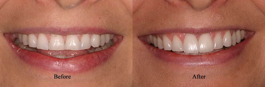 Porcelain Veneers Simi Valley